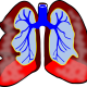 Why Treat Submassive Pulmonary Embolism