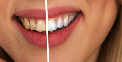 Why Are Custom Whitening Trays Better than Strips?