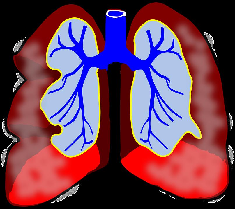 Why Treat Submassive Pulmonary Embolism