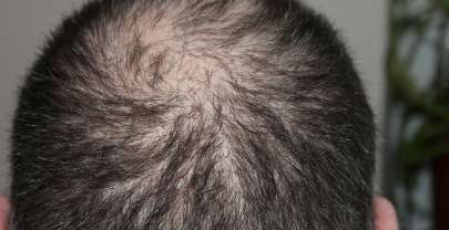 Top 2 Non-Surgical Methods in Solving Hair Loss